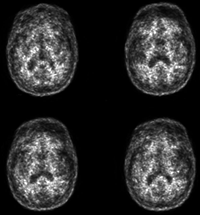 MRI of the Prostate - UCSF Medical