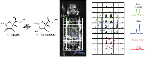 Hyperpolarized [1-13C] dehydroascorbate as an endogenous redox sensor for in vivo metabolic imaging