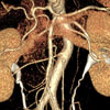 CT Angiogram