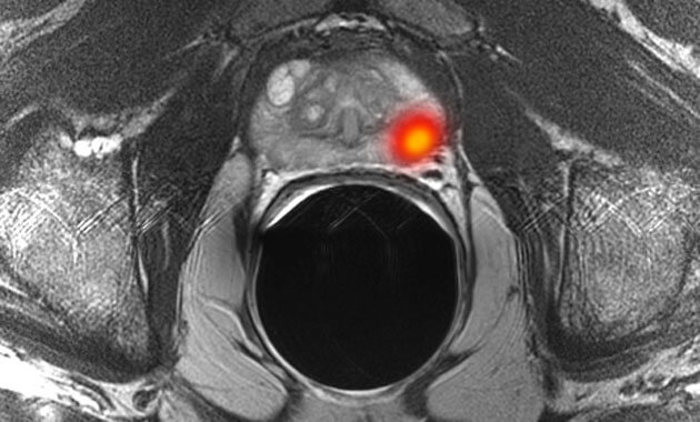 Multiparametric MR imaging of prostate cancer