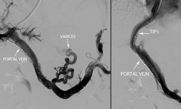 Transjugular Intrahepatic Portosystem Shunt (TIPS), the varices no longer fill