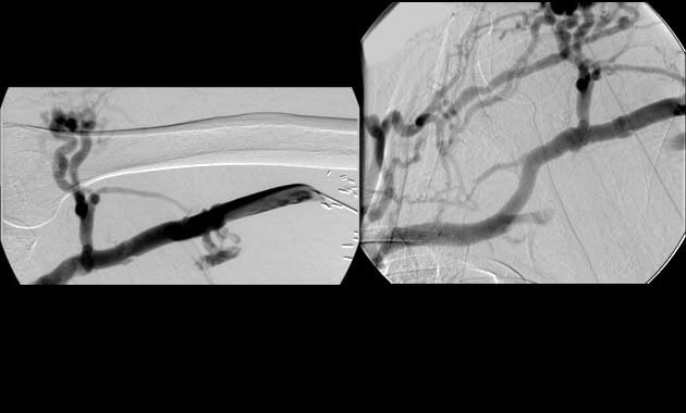 Occlusion of the left brachiocephalic vein with formation of extensive collateral vessels