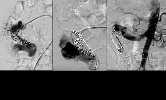 Embolization of a large congenital arteriovenous malformation