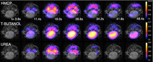 The Hyperpolarized MRI Technology Resource Center  Research & Development